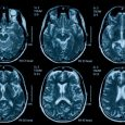 How the Right Tech Tools Could Reduce TBI Severity